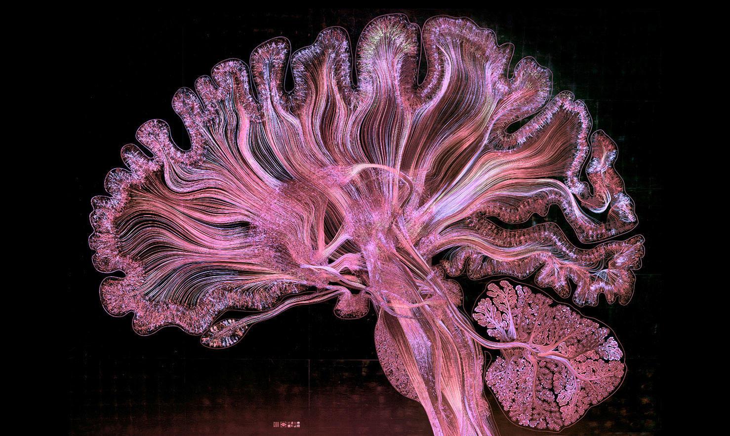 Как мозг влияет на наш вкус в живописи
