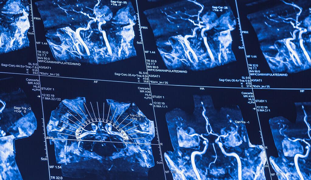 Измерять активность Вашего мозга: МРТ, который всегда с тобой